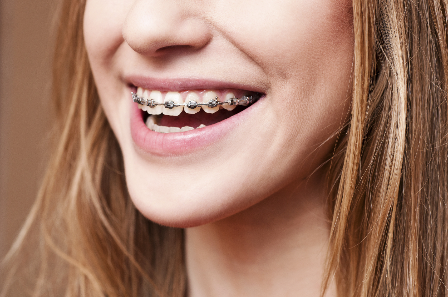 Easy Steps for a Successful Orthodontic Treatment