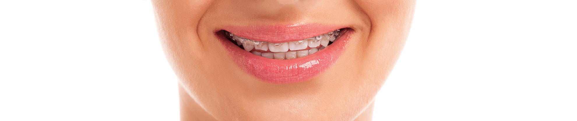 Orthodontics in Midland, TX