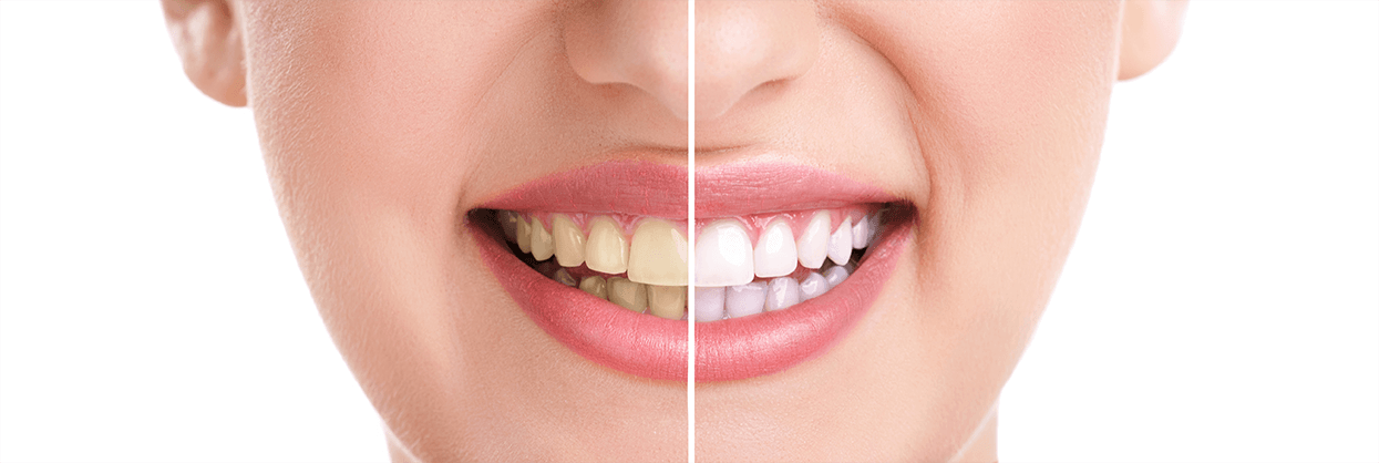 Teeth Whitening in Midland, TX
